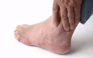 Причины, симптомы и лечение с помощью лекарственных средств и народных методов болей в голеностопном суставе