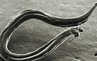 Как обнаружить и вылечить анкилостомидоз?