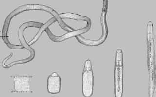 Как избавиться от ленточного червя?