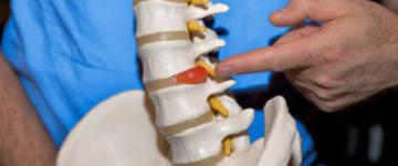 Причины заболевания и лечение протрузий дисков l3 l4 l4 l5 s1 пояснично-крестцового отдела позвоночника