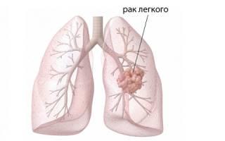 Как протекают стадии рака легких?