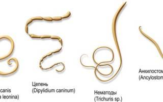 Какие бывают разновидности глистов у человека?