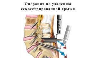 Как проводится операция по удалению секвестрированной грыжи
