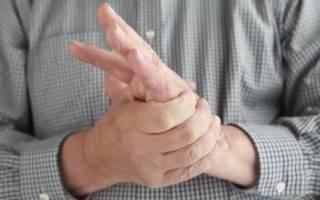 Почему немеют руки и что делать в таком случае?