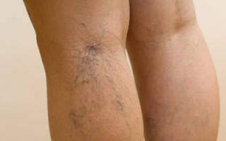 Причины появления и лечение темных коричневых пятен на ногах