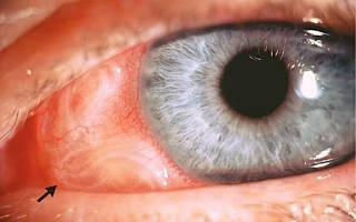Что делать если у вас глазные паразиты?