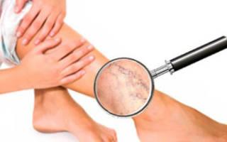 Какую диету необходимо соблюдать при варикозном расширении вен на ногах?