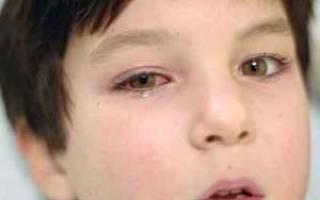 Герпес глаз: симптомы, причины, лечение