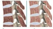 Симптомы и лечение остеопороза шейного и пояснично-крестцового отделов позвоночника