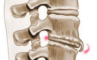 Симптомы, лечение спондилеза грудного отдела позвоночника