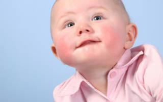 Пищевая аллергия у грудничков: лечение, причины и основные симптомы