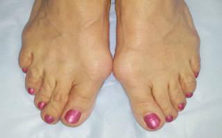 Причины появления и что делать, если косточка на ноге выше ступни опухла и болит?