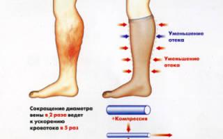 Выбор ортопедических колготок от варикоза