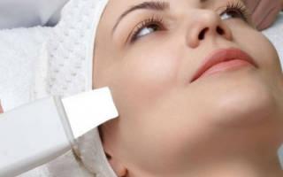 Как вылечить и убрать аллергию с лица, чем её можно лечить