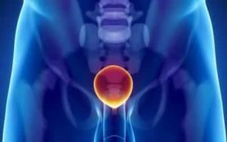 Лечение рези в мочеиспускательном канале у мужчин и женщин