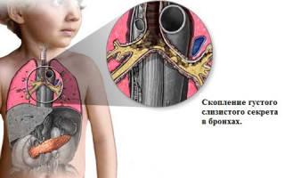 Лечение муковисцидоза у детей