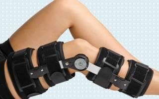 Какие существуют ортезы на коленный сустав и как правильно выбрать изделие для себя?