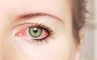 Хронический аллергический конъюктивит: симптомы, лечение