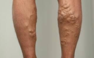 Как эффективно лечить варикоз на ногах у мужчин