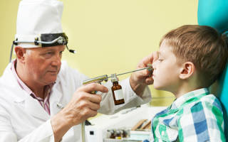 Почему увеличиваются аденоиды у детей?