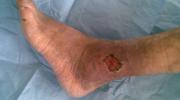 Эффективное лечение трофической язвы на ноге