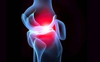 Причины, симптомы и лечение артралгии коленного и тазобедренного суставов