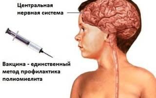 Стоит ли бояться прививки от полиомиелита?