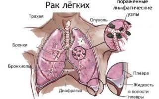 Как помочь при раке легких 4 степени и сколько живут с ним