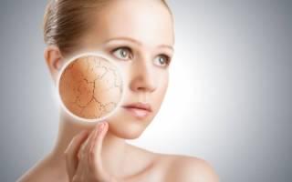 Как выбрать крем для сухой кожи?