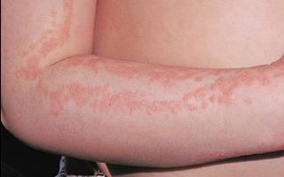 Аллергия на руках: как избавиться от этого недуга ребенку или взрослому