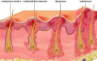 Чем лечить чирей на лобковой части?