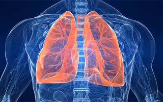 Эффективное лечение пневмонии народными средствами