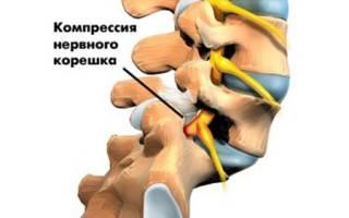 Корешковый болевой синдром — причины, симптомы, лечение