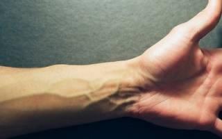 Причины появления и лечение шишки на вене руки