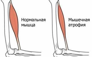 Атрофия мышц — основные симптомы и способы лечения