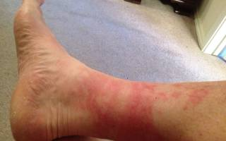 Из-за чего красные пятна на голенях, бедрах и под коленями?
