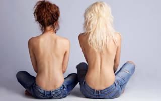 Причины появления прыщей на спине у женщины