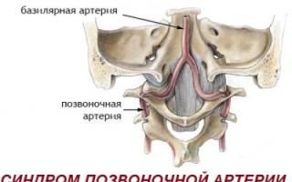 Признаки и лечение синдрома позвоночной артерии при шейном остеохондрозе