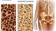 Симптомы, лечение и методы диагностики остеопороза костей