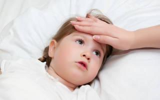 С чем связан холодный пот у ребенка?