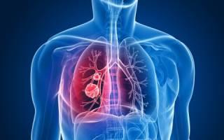 Признаки и лечение периферического рака легкого