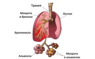 Причины и симптомы атипичной пневмонии у взрослых
