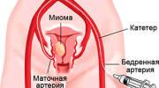Эффективное лечение миомы матки небольших размеров