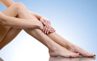 Способы лечения сосудистых звездочек на ногах