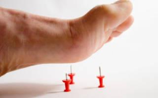 Признаки диабетической нейропатии и способы ее лечения