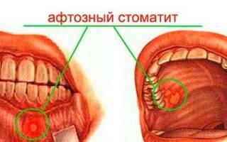 Афтозная форма стоматита и методы терапии