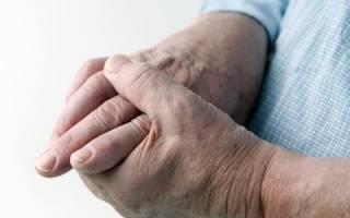 Значение анализа крови на АЦЦП в диагностике ревматоидного артрита