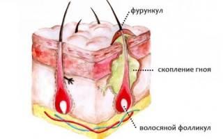Применение антибиотиков при фурункулах