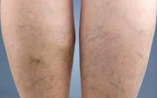 Лечение варикозного расширения вен на ногах народными средствами