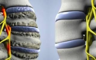 Что такое унковертебральный артроз шейного отдела позвоночника?
